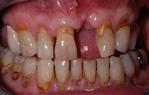 Intérêt du full digital workflow pour le traitement unitaire du secteur maxillaire antérieur : À propos d'un cas