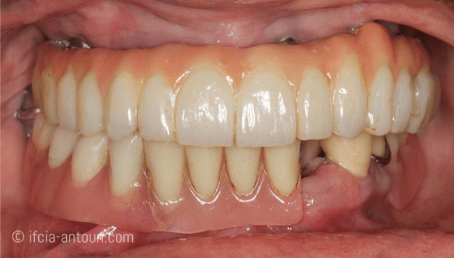 Procédé d'une réhabilitation complète fixe implanto-portée à la mandibule