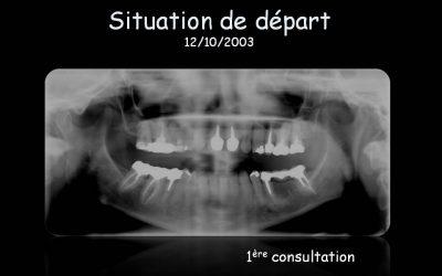 Reconstruction unilatérale terminale mandibulaire